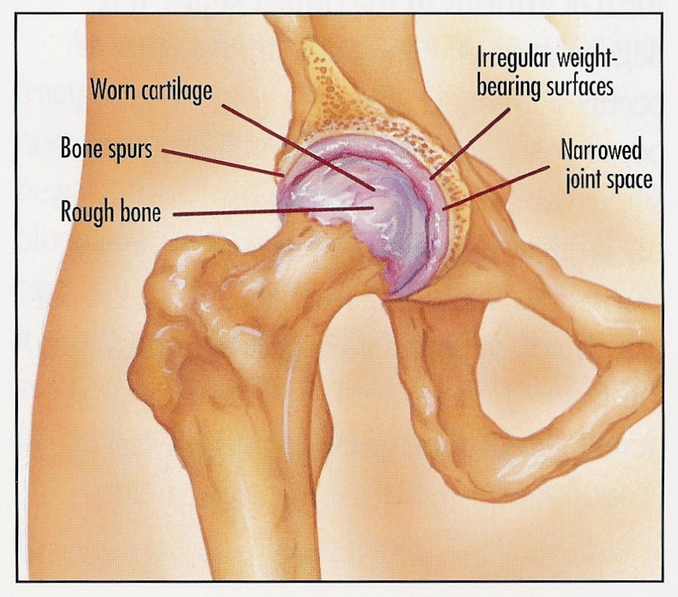 Hugh Blackley Total Hip Joint Replacement Hip Replacement Surgery