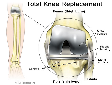What do you need your During  after knee replacement surgery Know